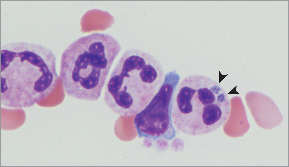 Review of Lyme Disease, Human Granulocytic Anaplasmosis, and Babesiosis