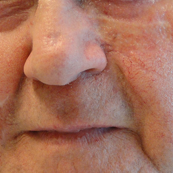 Dermatography for Scars and Skin Grafts in Head and Neck Patients (JAMA Facial Plastic Surgery)
