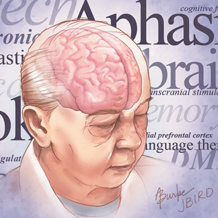 Prevalence of Cardiovascular Risk Factors and Strokes in Younger Adults (JAMA Neurology)
